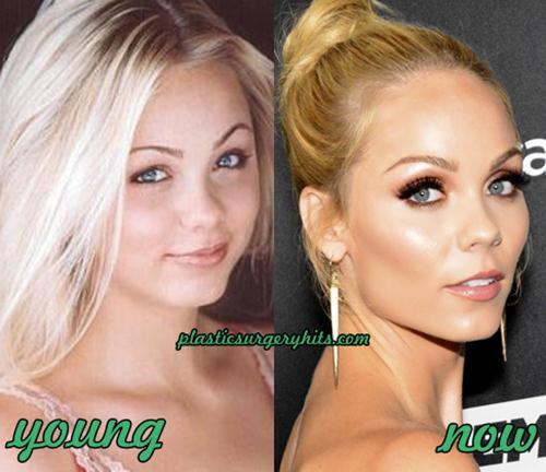 Laura Vandervoort plastic surgery speculation