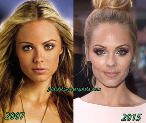 Laura Vandervoort plastic surgery