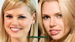 Sophie Monk Plastic Surgery