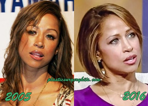 Stacey Dash Plastic Surgery Fact or Rumor