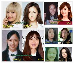 Top 5 Surprising Korean Plastic Surgery