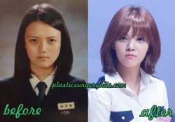 AOA Shin jimin Plastic Surgery