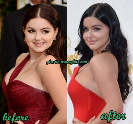 Ariel Winter Breast Reduction