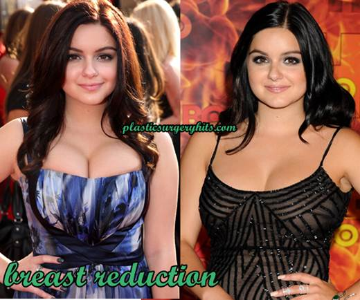 Ariel Winter Plastic Surgery Breast Reduction