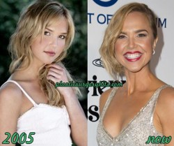 Arielle Kebbel Breast implants