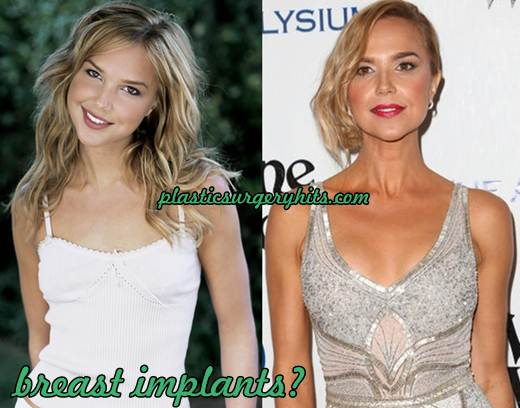 Arielle Kebbel plastic surgery breast implants