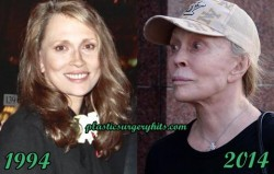 Faye Dunaway plastic surgery facelift