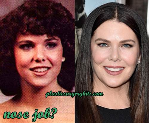 Lauren Graham Nose Job
