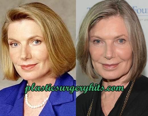 Susan Sullivan Facelift
