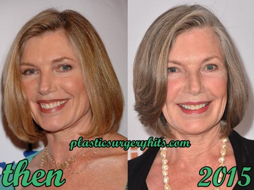 Susan Sullivan Plastic Surgery Before and After
