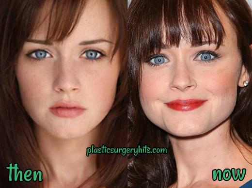 Alexis Bledel Plastic Surgery fact or Rumor