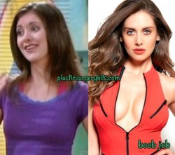 Alison Brie Plastic Surgery Boob Job