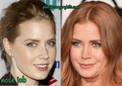 Amy Adams Nose Job