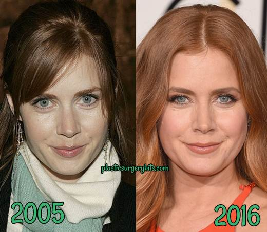 Amy Adams Plastic Surgery fact or rumor