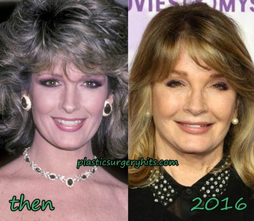 Deidre Hall Plastic Surgery Before and After
