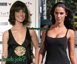 Jessica Lowndes Plastic Surgery Boob Job