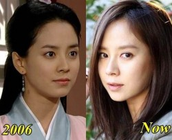 Song Ji Hyo Plastic Surgery Untrue