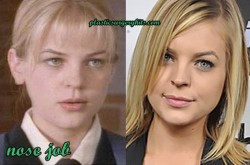 Kirsten Storms Plastic Surgery Nose Job