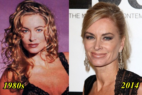 Eileen Davidson Plastic Surgery before and After Plastic Surgery Facelift Botox