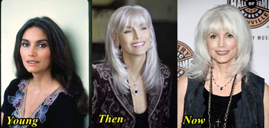 Emmylou Harris Plastic Surgery Before and After Rumors