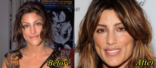 Jennifer Esposito Plastic surgery Before After