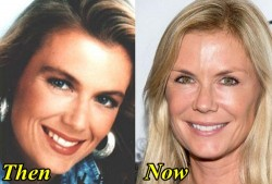 Katherine Kelly Lang Plastic Surgery Before and After Botox, Facelift