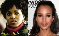 Kerry Washington Plastic Surgery Nose job
