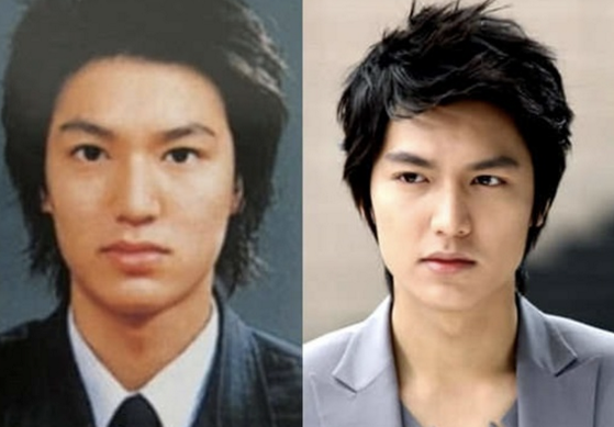 lee-min-ho-plastic-surgery-before-and-after