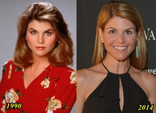 Lori Loughlin Plastic Surgery Before and After  Facelift