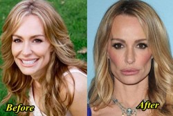 Taylor armstrong plastic surgery Before After