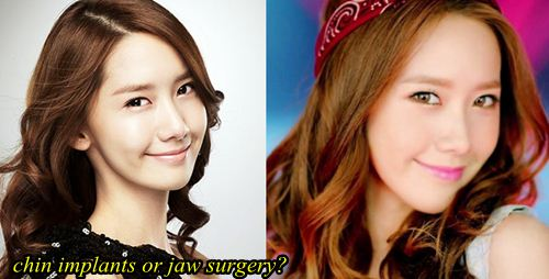 Yoona plastic surgery chin implants