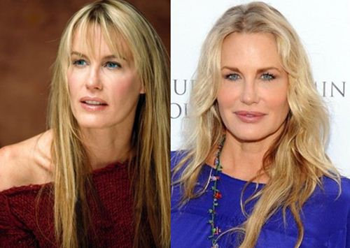 daryl hannah plastic surgery before after