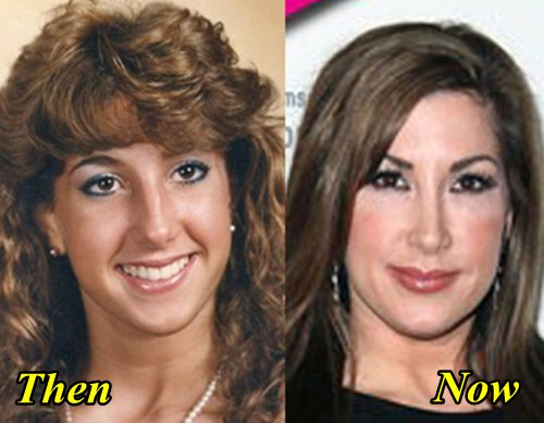 Jacqueline Laurita Plastic Surgery Before and After Tummy Tuck, Boob Job