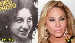 Adrienne Maloof Plastic Surgery Nose Job
