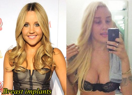 Amanda Bynes Plastic Surgery Before and After Breast Implants