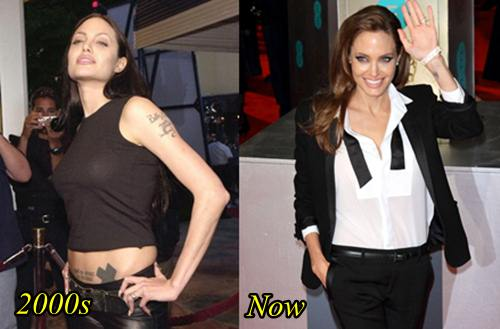 Angelina Jolie Breast Removed Mastectomy