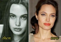 angelina jolie Plastic surgery Before After