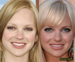 Anna Faris Plastic Surgery Before After Nose job