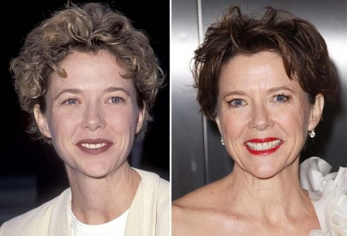Annette-Bening-Before-and-After-Plastic-Surgery