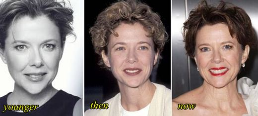 Annette Bening Plastic Surgery Before and After