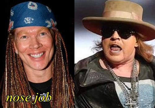Axl Rose Plastic surgery Nose Job