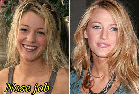 Blake Lively Plastic Surgery Before After Nose job