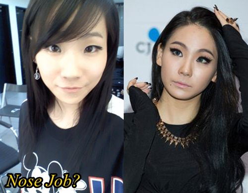 CL 2NE1 Plastic Surgery Before and After Nose Job