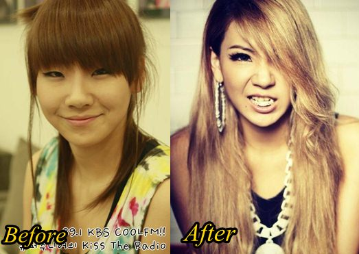 CL 2NE1 Plastic Surgery Before and After Pictures