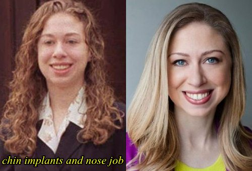 Chelsea Clinton Plastic Surgery Chin Implants Nose Job