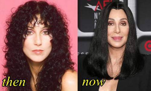 Cher Plastic Surgery before and after