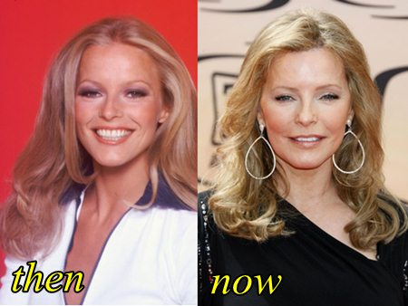 Cheryl Ladd Plastic Surgery Before and After - Plastic Surgery Hits