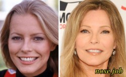 Cheryl Ladd Plastic Surgery Nose Job