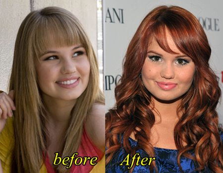 Debby Ryan Plastic Surgery Before and After