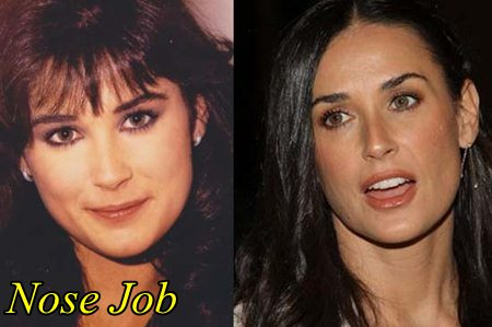 Demi Moore Plastic Surgery Nose Job